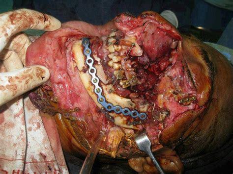 74d62db36d62cbb7e6a56da9ab4bcffd jpg 736 215 552 surgery