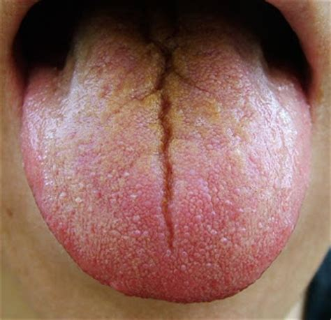 Cracks In Tongue Pictures