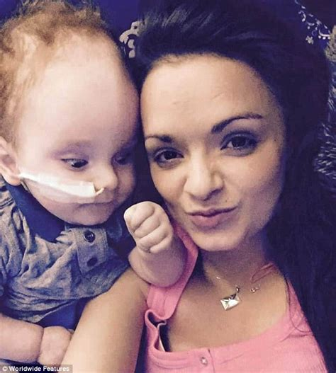 born private meaning baby born without a brain celebrates his 2nd birthday and