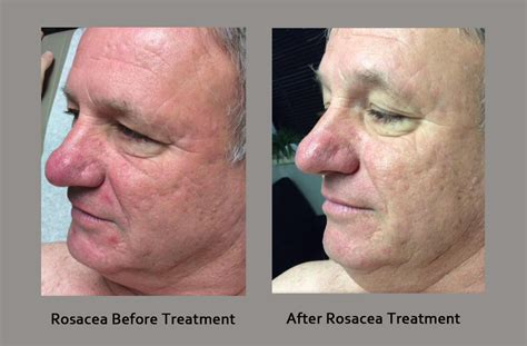 best treatment for acne rosacea image gallery rosacea medication