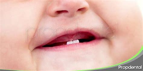 imagenes dientes temporales retraso en la erupci 243 n de los dientes de leche