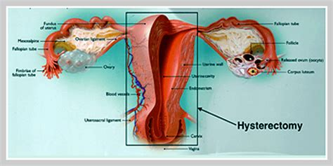 How Is For A Hysterectomy by Laparoscopic Hysterectomy Minimally Invasive Procedures