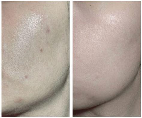 Jual Rohto Melano Cc Anti Spot Whitening Lotion Blemish Care Ori Japan review rohto mentholatum melano cc intensive anti spot