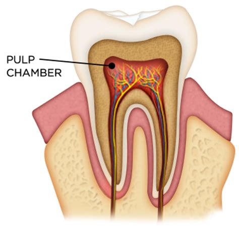 root canal diagram root canal diagram 28 images root canals root canal