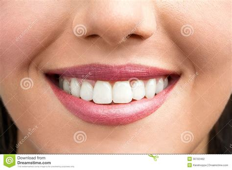 showing teeth up of smile stock photography image 30702462