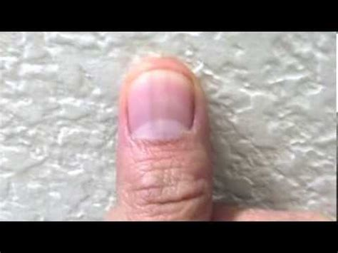 dark line on fingernail black line on nail melanoma quotes