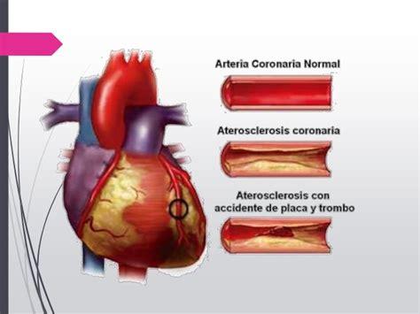 l infarto del miocardio infarto agudo al miocardio