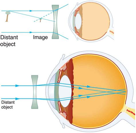 Contact Lens For Blind Eye Vision Correction 183 Physics