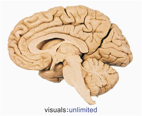 brain sagittal section brain sagittal section thinglink