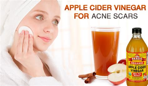 Apple Detox Cleanse Acne by Why And How To Use Apple Cider Vinegar To Cure Acne Scars