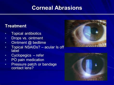 Contact Lens For Blind Eye The Red Eye And Selected Ocular Emergencies Ppt