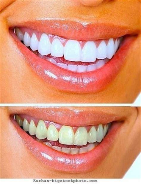 dents jauneschez les enfantsdun bebepourquoique faire