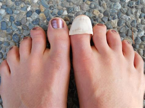 Toe Nail by Snacking Squirrel When Toenails Fall