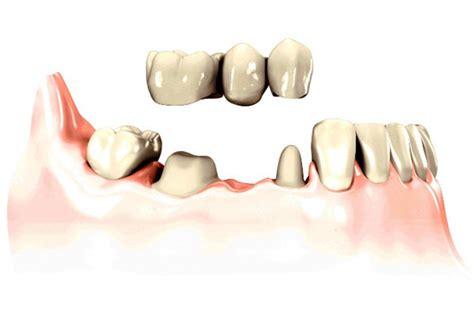 prezzo protesi dentaria mobile protesi fissa dentax itdentax it