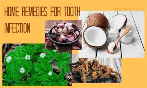26 home remedies for tooth infection