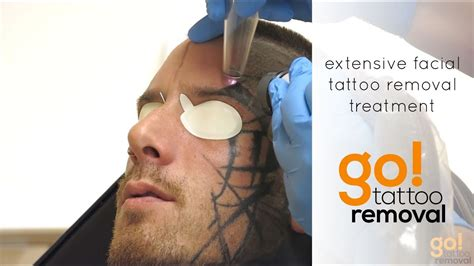 face tattoo removal extensive removal treatment