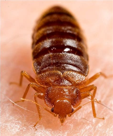 can bed bugs live in your skin bed bug bite photos
