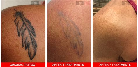 rethink tattoo removal rethink laser removal photos