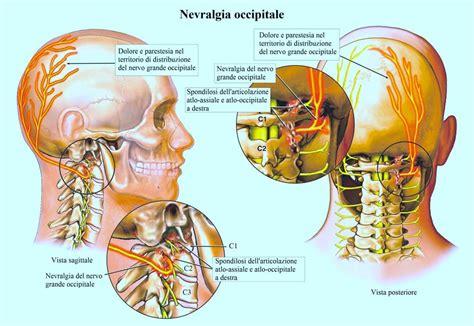 formicolio alla testa artrosi cervicale sintomi cura farmaci ed esercizi di