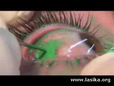 eyeball tattoo real visual destruction video eyeball tatoo www lasika org youtube