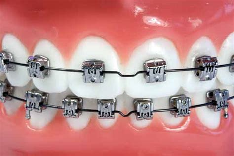 Bracket Behel Metal Sky Ortho types of braces torque orthodontics