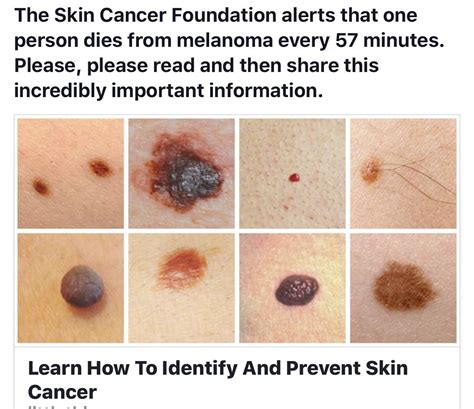 8 Tips For Spotting Skin Cancer Early by Pin By Hgardner On Health Cancer Sign