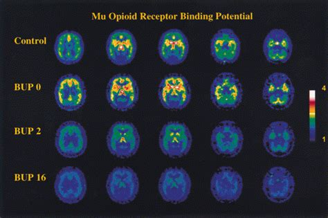 Promethazine For Opiate Detox by Does Codeine Help Detox Of Suboxone Ernestbolen1 S