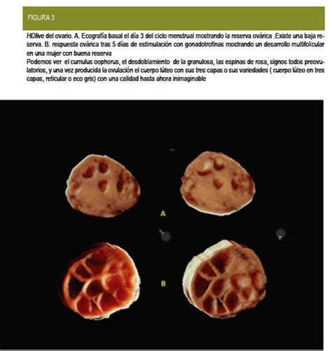 Imagenes Reales De Ovarios Poliquisticos | revista iberoamericana de fertilidad avances ecogr 225 ficos
