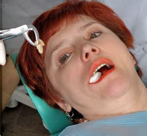 tooth extraction healing remedies