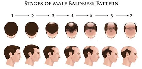 can male pattern hair loss be reversed hair fall treatment in hyderabad hair sure