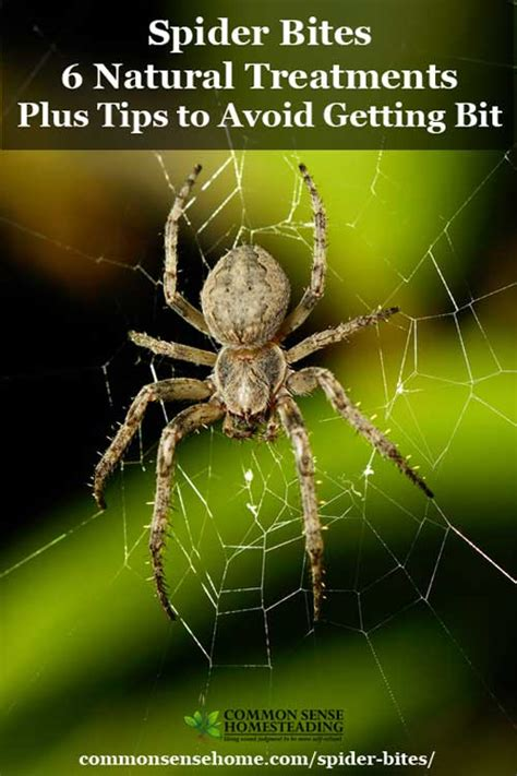 spider bites 6 treatments tips to avoid