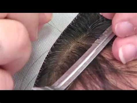 micro link method sure hair non surgical hair transplant micro link