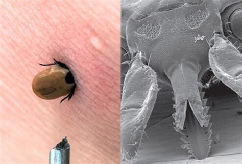 do dogs get fevers rocky mountain spotted fever see photos of the rash