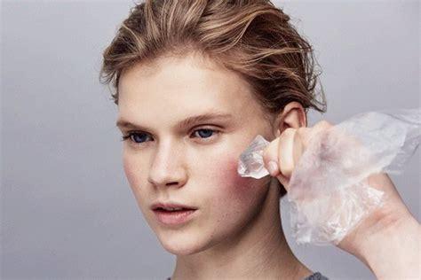 merawat wajah berjerawat  es batu carles