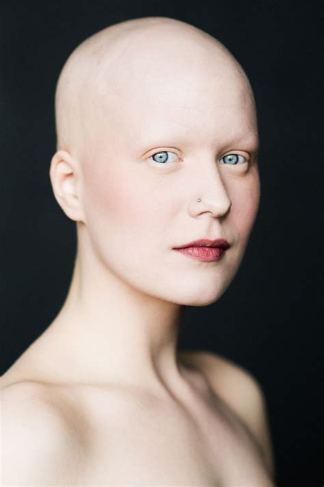 completely bald women 330 best images about bald women on pinterest