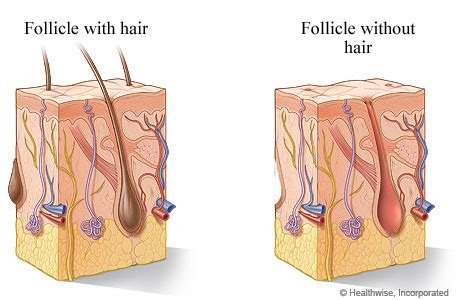 folliculitis cause pubic hair to grow sideways and in layers hair follicle