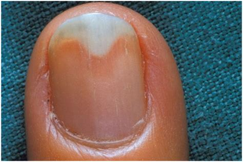 nail separated from nail bed nails separating from nail bed beautify themselves with