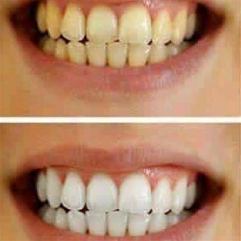 natural white teeth whitening before and after www imgkid com the