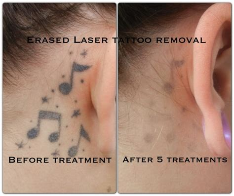 laser tattoo removal after one treatment after the 5th treatment erased removal las vegas