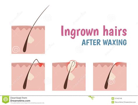 folliculitis cause pubic hair to grow sideways and in layers structure of the hair follicle stock vector illustration