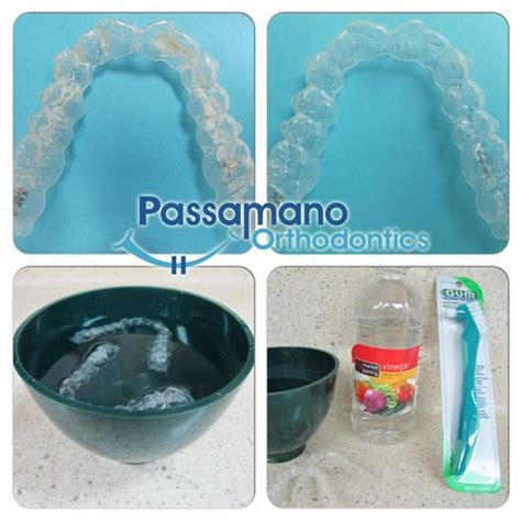 clean  crusty invisalign tray  retainer  home