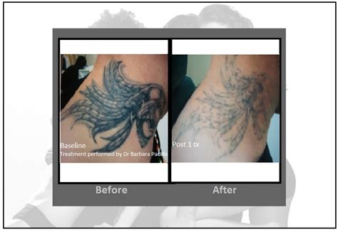 tattoo prices ct laser tattoo removal enlighten latest and most