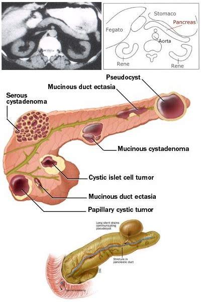diabete cura alimentare dieta per cisti pancreas