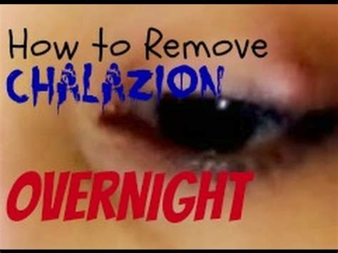 how to remove get rid of chalazion overnight