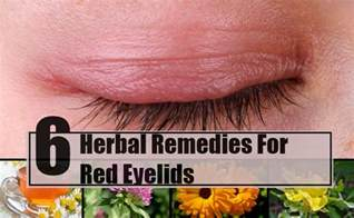 itchy eyelids home remedy 6 effective herbal remedies for eyelids how to treat