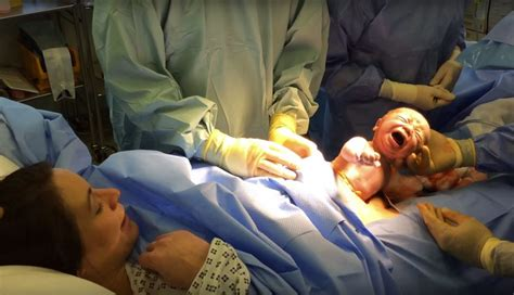 watch a c section video watch as this baby wiggles his own way out of his mom