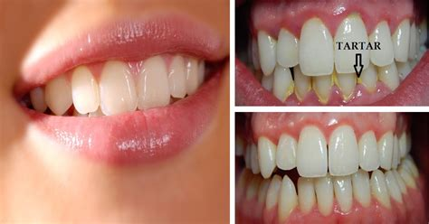 home remedies for remove plaque and tartar from teeth