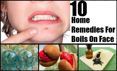 11 boils on home remedies treatments cure