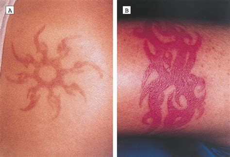 henna tattoo skin reaction treatment clinicopathologic features of skin reactions to temporary