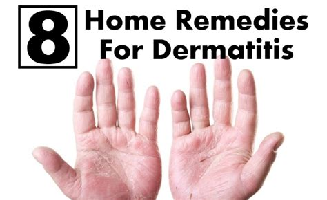 8 home remedies for dermatitis search herbal home remedy